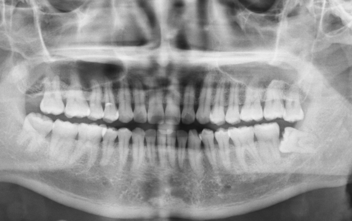 7 reasons your dentist might request a whole mouth x-ray