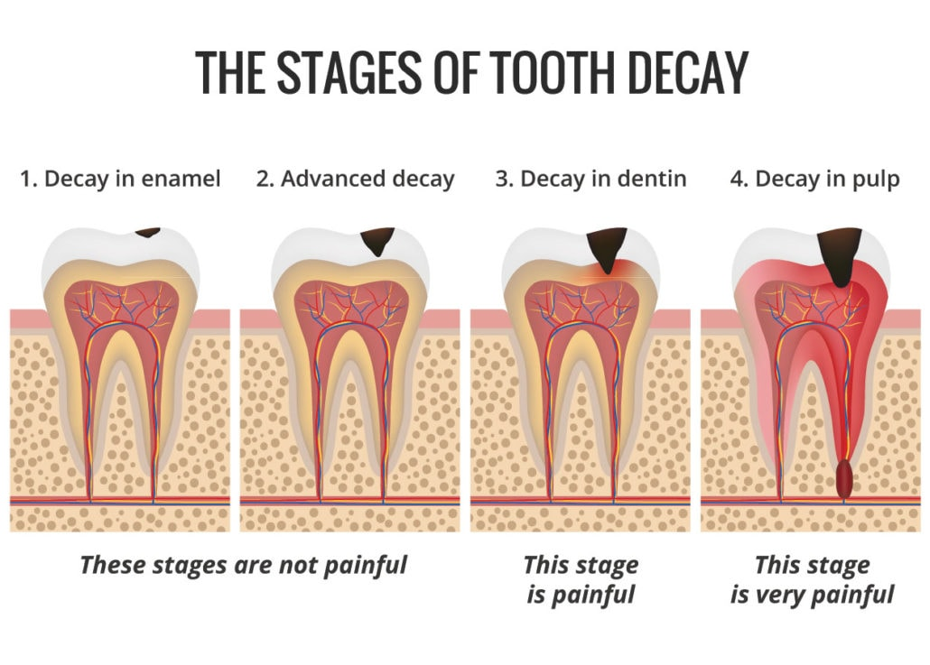 Five Ways to Reduce Your Risk of Tooth Decay